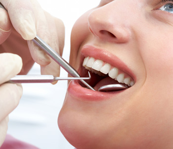 "Melbourne area residents ask, ""What are implant-supported dental bridges?"""