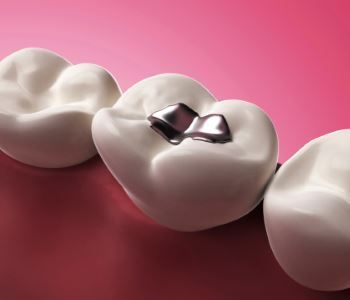 Amalgam Removal from dentist in Melbourne