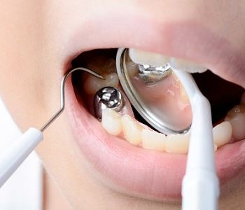 amalgam filling removal from dentist