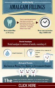 Amalgam Fillign Infographic