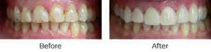 CEREC - Before and After
