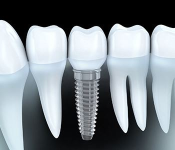 dental implants from moonee ponds