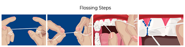Flossing Steps