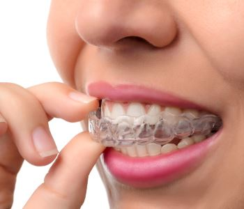 How does the cost of Invisalign compare to traditional braces in Sunbury and Moonee Ponds?