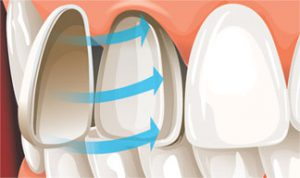 Veneers Moonee Ponds - Porcelain Veneers