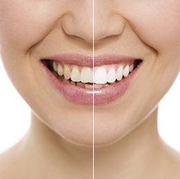 Women Teeth Whitening Before After