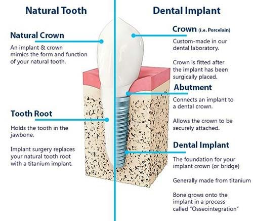 The benefits of dental implants are important to understand.