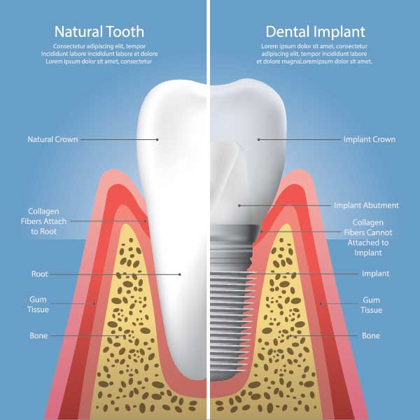 Dental Implant in Detail