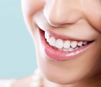 Smilling lady with showing her brighter teeth